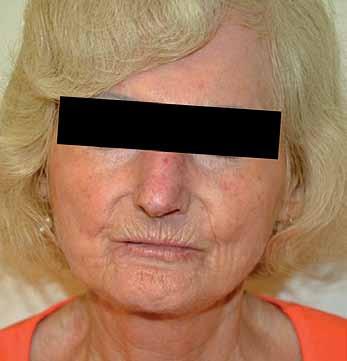 Maskovitý obličej, radiální rýhy kolem úst, teleangiektazie.
