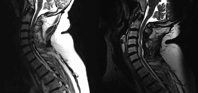 Pacient ze skupiny Ap, u kterého byla provedena laminektomie v rozsahu třetího až pátého krčního obratle. Předoperační MR a pooperační MR s odstupem dvou let (K2).