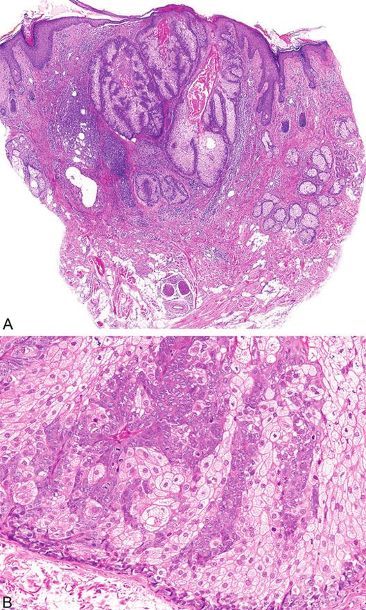 Sebaceózní adenom tvořený několika lobuly pyriformního tvaru spojené s epidermis (A); jednotlivé lobuly jsou složeny z periferní vrstvy tvořené několika řadami malých bazaloidních germinativních buněk a z centrálně uložených zralých sebocytů s objemnou, narůžovělou, pěnitou až jemně vakuolizovanou cytoplazmou (B)