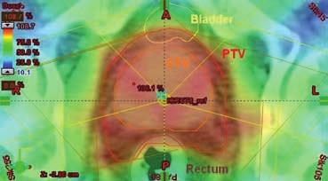 Izodozový plán – radioterapie s modulovanou intenzitou (IMRT)  Fig. 7 Isodose plan – intensity-modulated radiation therapy (IMRT)