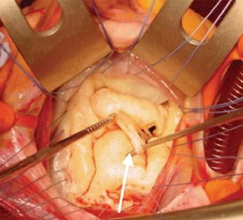 Chirurgická korekce ischemické mitrální regurgitace, revize sekundárních šlašinek.