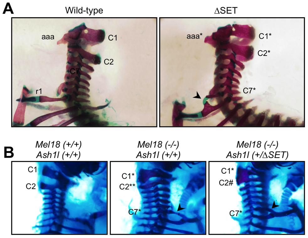 Typical skeletal phenotypes of <i>Ash1l</i> ΔSET mice, and a genetic interaction between <i>Ash1l</i> and <i>Mel18</i>.