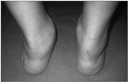 Levostranná planovalgózní deviace nohy, známky ruptury šlachy m. tibialis posterior.