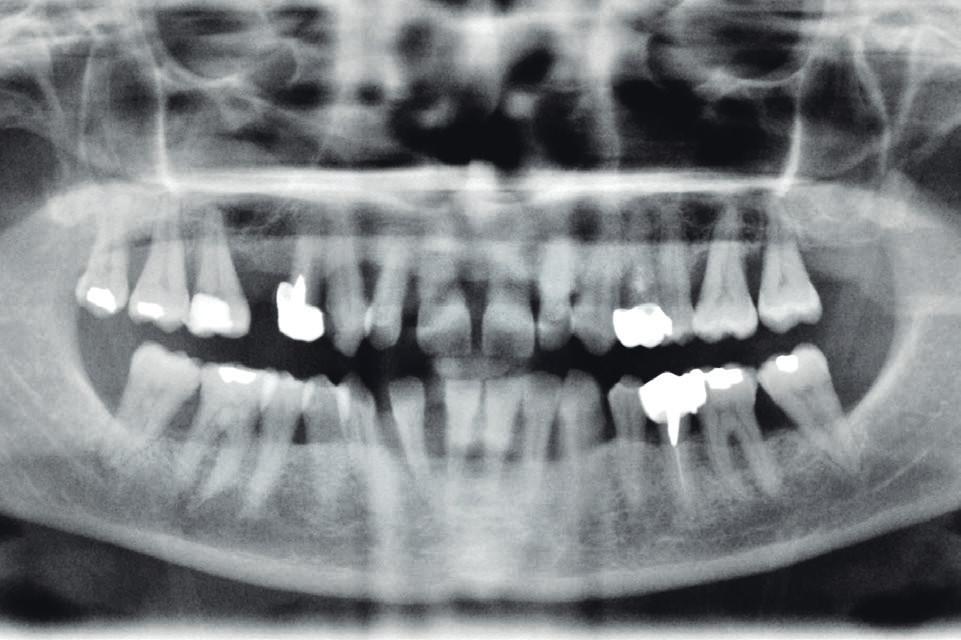 Obr. 5d OPG snímek 46leté ženy s diabetem 2. typu (klinický stav viz obr. 5c). Generalizovaná pokročilá parodontitis s resorpcí alveolární kosti až do dvou třetin délky kořene, viklavost II.–III. st. u většiny zubů.