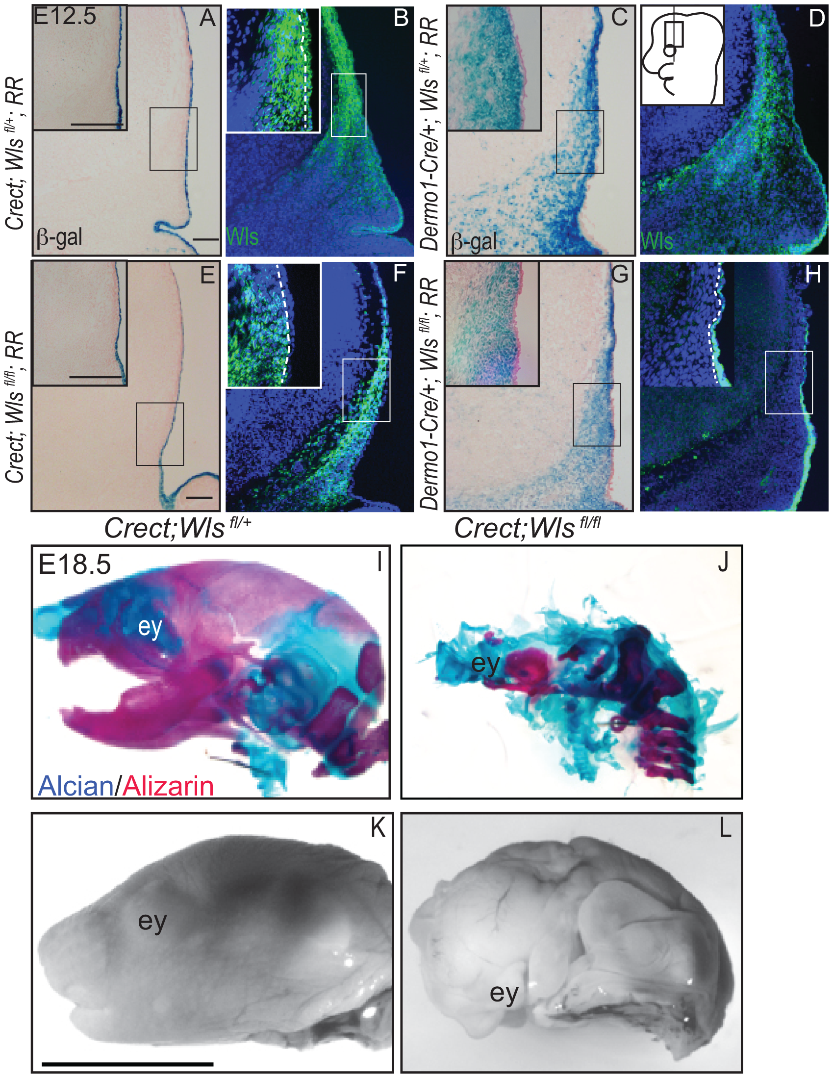 Deletion of <i>Wntless</i> in the cranial ectoderm and mesenchyme.