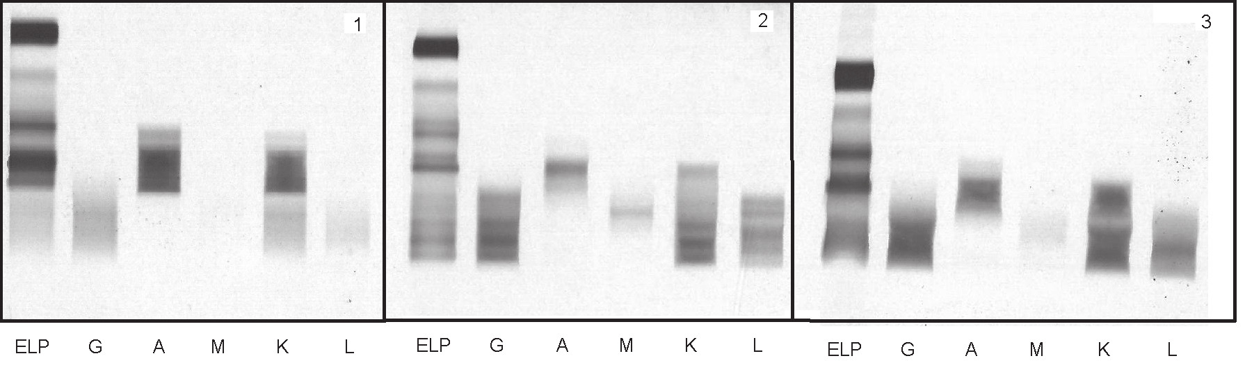 Fig. 2. Transient presence of oligoclonal bands in patient after autologous transplantation;
