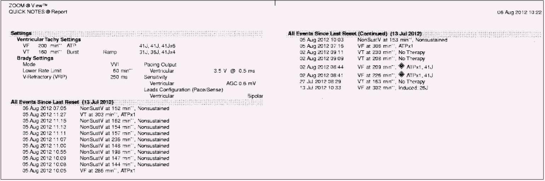 Záznam arytmií v paměti ICD: opakované detekce komorových událostí do měsíce od implantace. NonSustV – nesetrvalá komorová tachykardie, VT – komorová tachykardie, VF – komorová fibrilace, ATP – antitachykardická stimulace.
