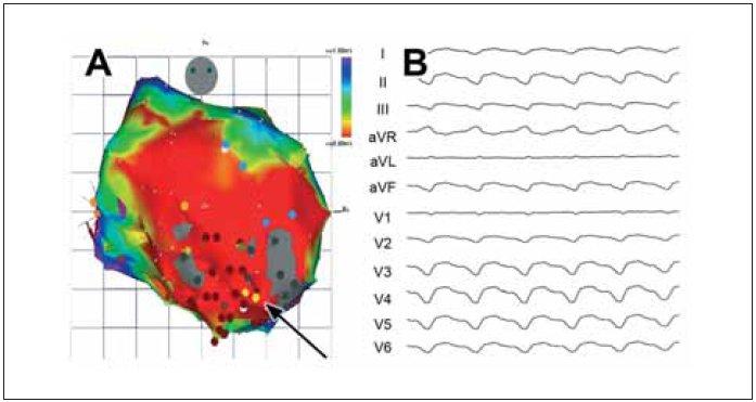 Ukázka 3rozměrné elektroanatomické voltážové mapy levé komory srdeční (zadopřední projekce) u pacienta s KT pocházející ze substrátu v rozsáhlém aneuryzmatu hrotu a přední stěny. Červená barva dokumentuje rozsah poinfarktového poškození (nízká voltáž pod 0,5 mV), šedé oblasti označují denzní jizvu, kde nelze ani stimulovat. Kritický istmus KT byl v oblasti mezi dvěma denzními jizvami, oblast exitu směrem dolů ke hrotu. Mapa byla sestrojena při sinusovém rytmu a hnědé body ukazují ablační léze vedoucí k odstranění vyvolatelnosti arytmie. B. EKG-záznam klinické KT u daného pacienta. Široké komplexy QRS se sklonem osy doleva a konkordantním tvarem od V<sub>1</sub>–V<sub>6</sub> ukazují na KT s exitem v apikální oblasti.