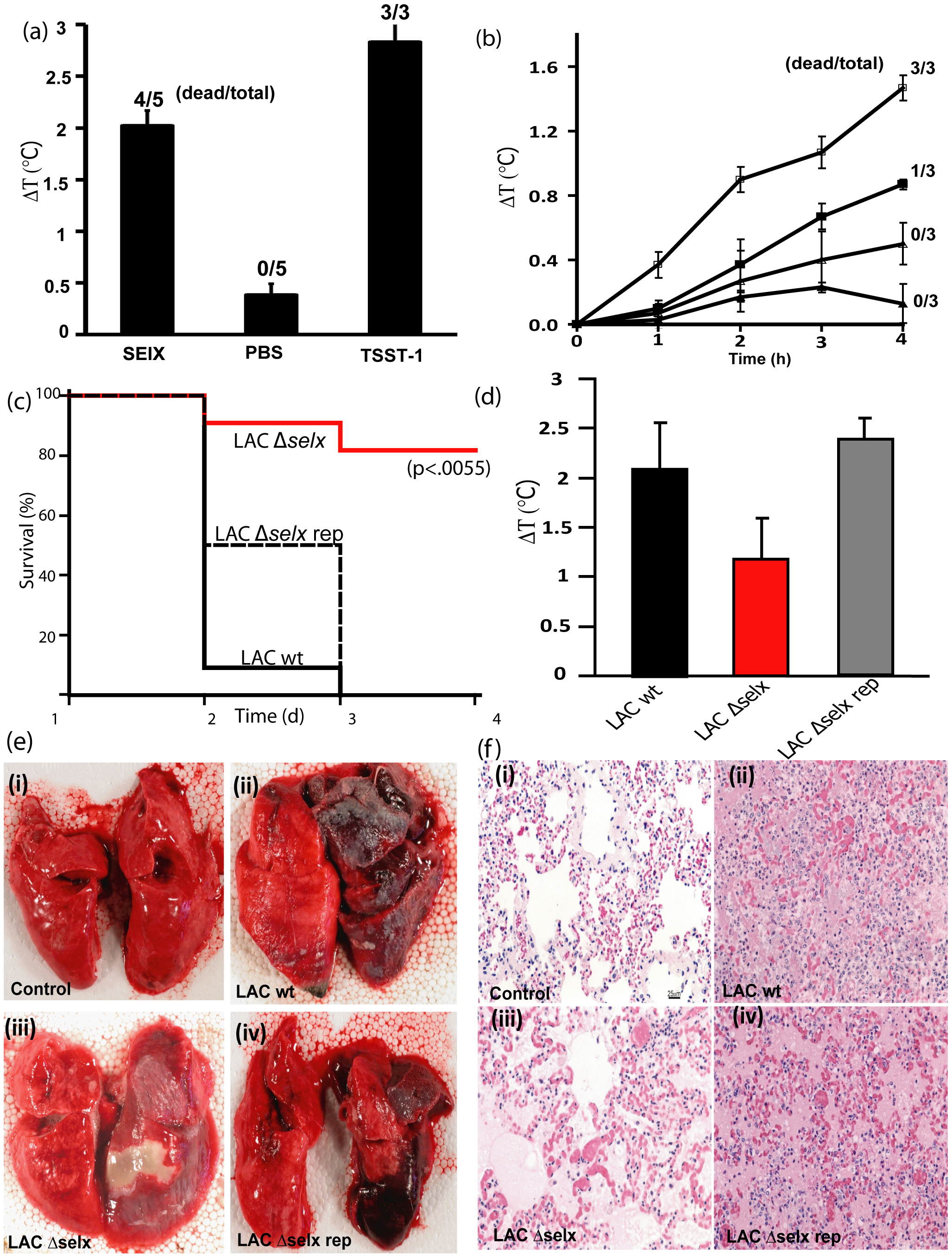 SElX causes TSS and contributes to the severity and lethality of necrotizing pneumonia caused by CA-MRSA USA300.