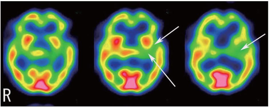 Fig. 2. In September, single photon emission computed tomography (SPECT) images using technetium-99m ethyl cysteinate dimer (ECD) show reduced perfusion in the parieto-temporal regions, especially the left temporal area.