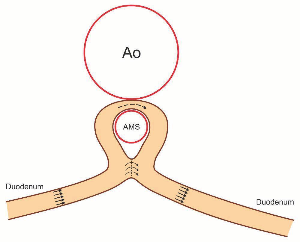 Schematické znázornění – duodeno-duodeno anastomóza side-to-side. Fig. 4. Morphology of duodeno-duodeno anastomosis side-to-side.