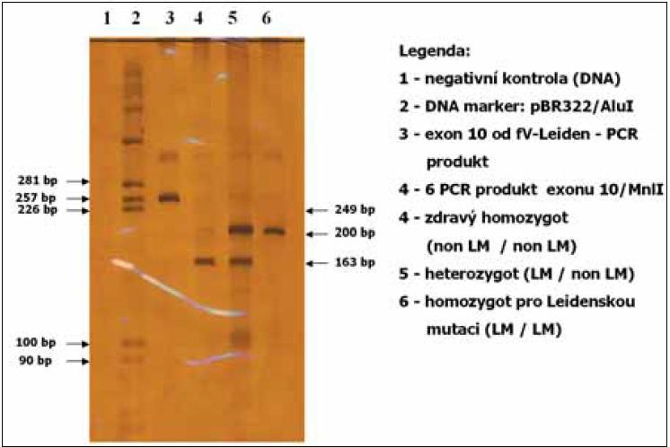 Vyšetření Leidenské mutace v exonu 10 genu pro faktor V, metoda PCR.