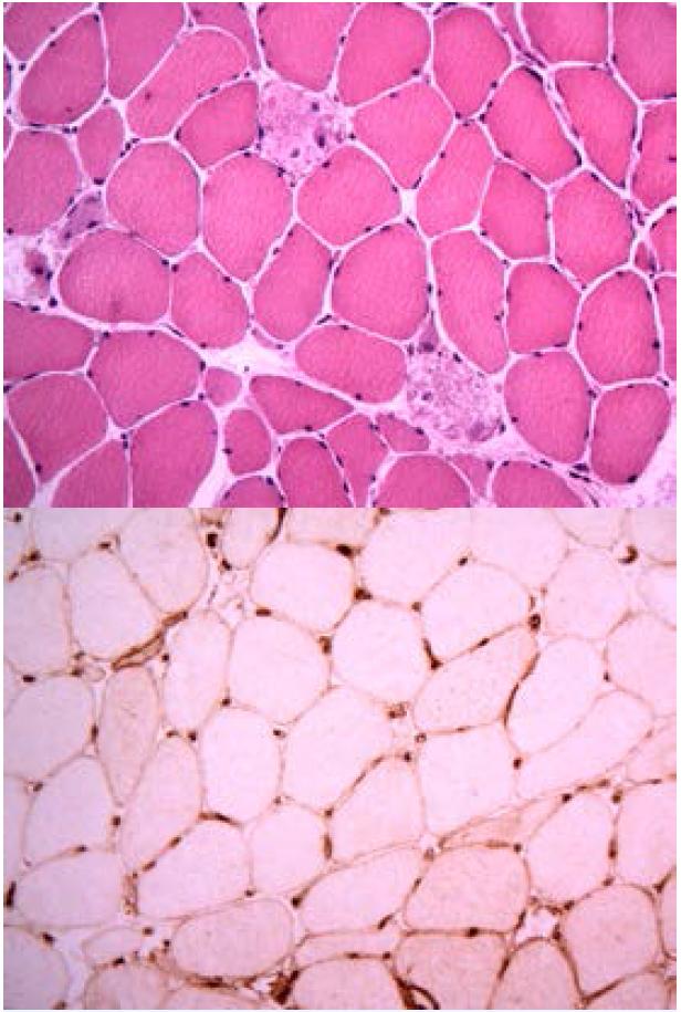 Histologický nález u imunitně zprostředkované nekrotizující myopatie a anti-HMGCR protilátkami: a) nekrotická svalová vlákna bez zánětlivé infiltrace makrofágy (barvení hematoxylin a eozin), b) hyperexprese molekul HLA I na povrchu svalových vláken u IMNM.
