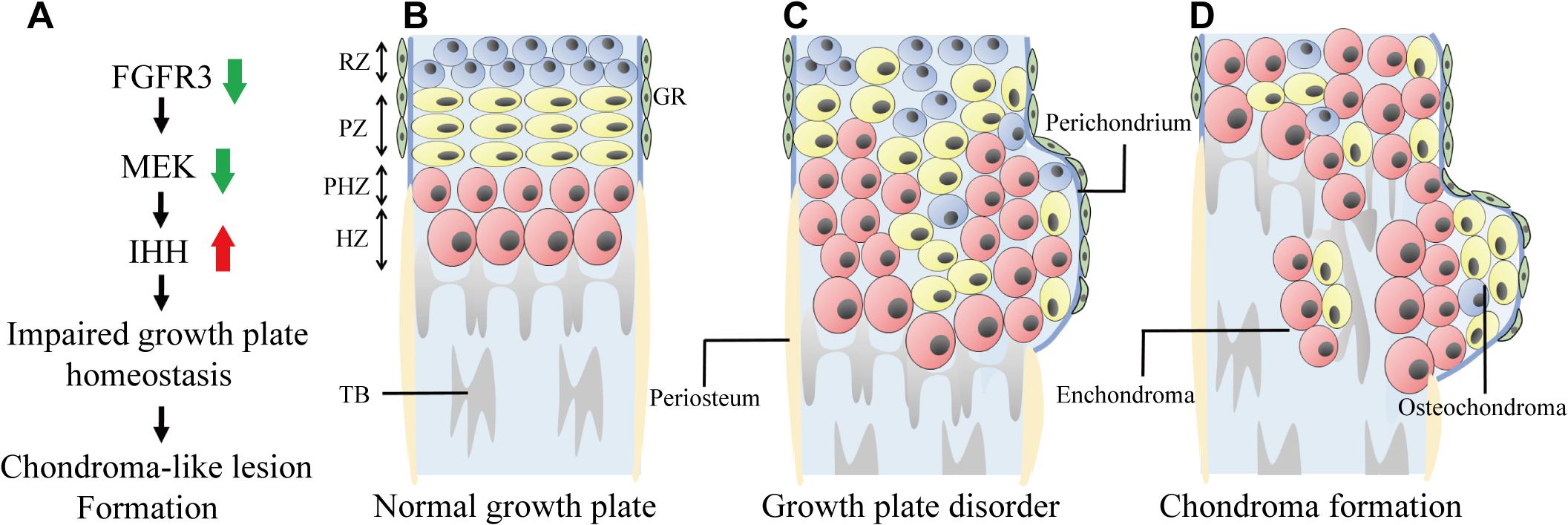 Model of chondroma-like lesion formation in <i>Fgfr3</i> cKO mice.
