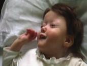 Kraniofaciální abnormita u 2. pacientky – brachycefalie, hypoplazie střední obličejové části, asymetrie frontální oblasti, malá dolní čelist.