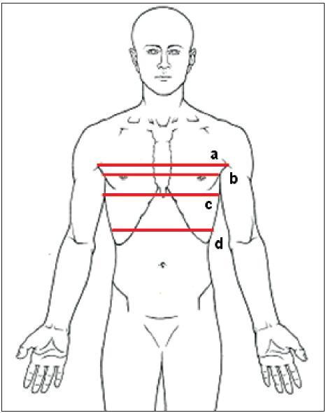 Hodnocení rozvíjení hrudníku – a) na úrovni axil; b) mezosternální; c) xiphosternální; d) polovina vzdálenosti umbilicus-processus xiphoideus.