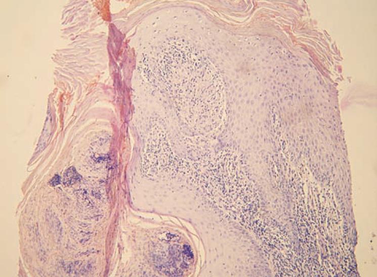 Verukózní povrch kůže s mohutnou hyperkeratózou, ložiskovou parakeratózou a zánětlivými elementy intrakorneálně, nepravidelná akantóza, v papilách koria zánětlivé infiltráty