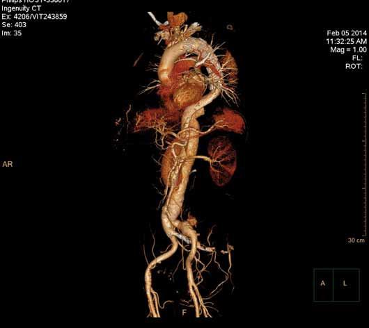 Speciální počítačové zpracování CT angiografie zvané Volume Rendering u pacienta prezentovaného na obr. 3 a 4.