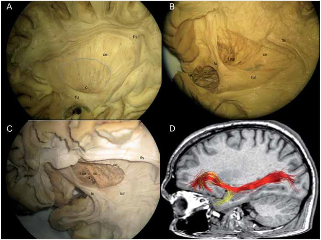 Obr. 3a. Dorzální claustrum (cl) (posterosuperiorní) navazující na svoji neokortikální projekci cestou capsula externa (ce), ventrální claustrum (anteroinferiorní) ostrůvkovitě zavzaté do fasciculus uncinatus (fu) a fasciculus fronto-occipitalis. Projekce putamen je označena šedou čárou. Obr. 3b. Laterální lentikulostriatické perforátory podbíhající fasciculus uncinatus a probíhají skrze odstraněné putamen, nad fasciculus uncinatus se přikládá dorzolaterálně probíhající fasciculus fronto-occipitalis (fof). Obr. 3c. Pohled shora na commissura anterior a substancia perforata anterior (spa), dobře patrná je kortikální projekce fasciculus uncinatus. Obr. 3d. DTI rekonstrukce fasciculus uncinatus (žlutá) a fasciculus fronto-occipitalis inferior (červená).