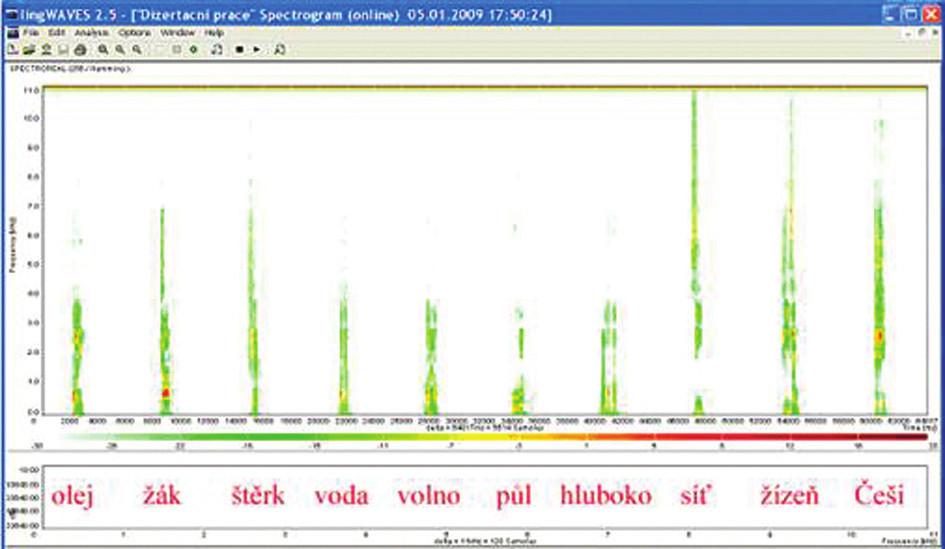 Sonogram slovní audiometrie, dekáda slov 65 dB na pozadí ticha.
