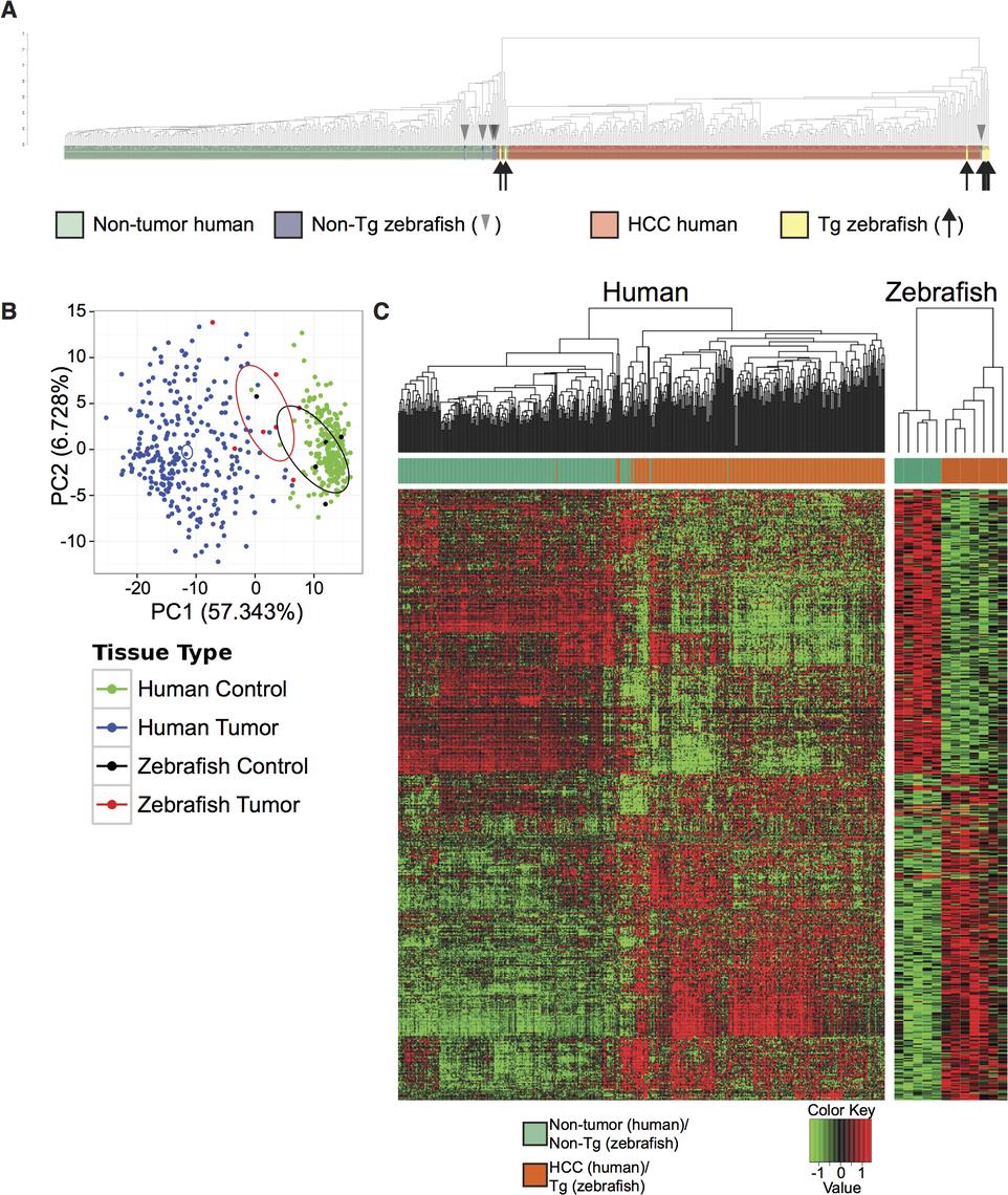 Cross-species comparison of <i>Tg(fabp10a</i>:<i>pt-β-cat)</i> zebrafish and human HCC.
