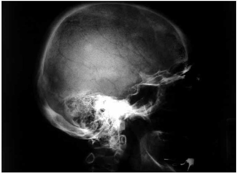 Boční rentgenový snímek lebky u pacientky s osteosklerotickým mnohočetným myelomem a POEMS syndromem s četnými osteosklerotickými ložisky na lebce.