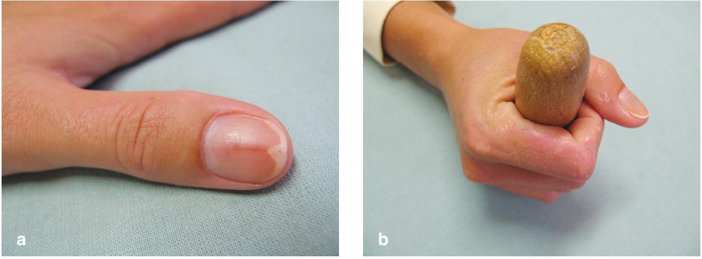 Obr. 3a, b. Fotoonycholýza po doxycyklinu (a) Držení hůlky při horské túře vysvětluje, proč v tomto případě je výjimečně postižen palec ruky (b).