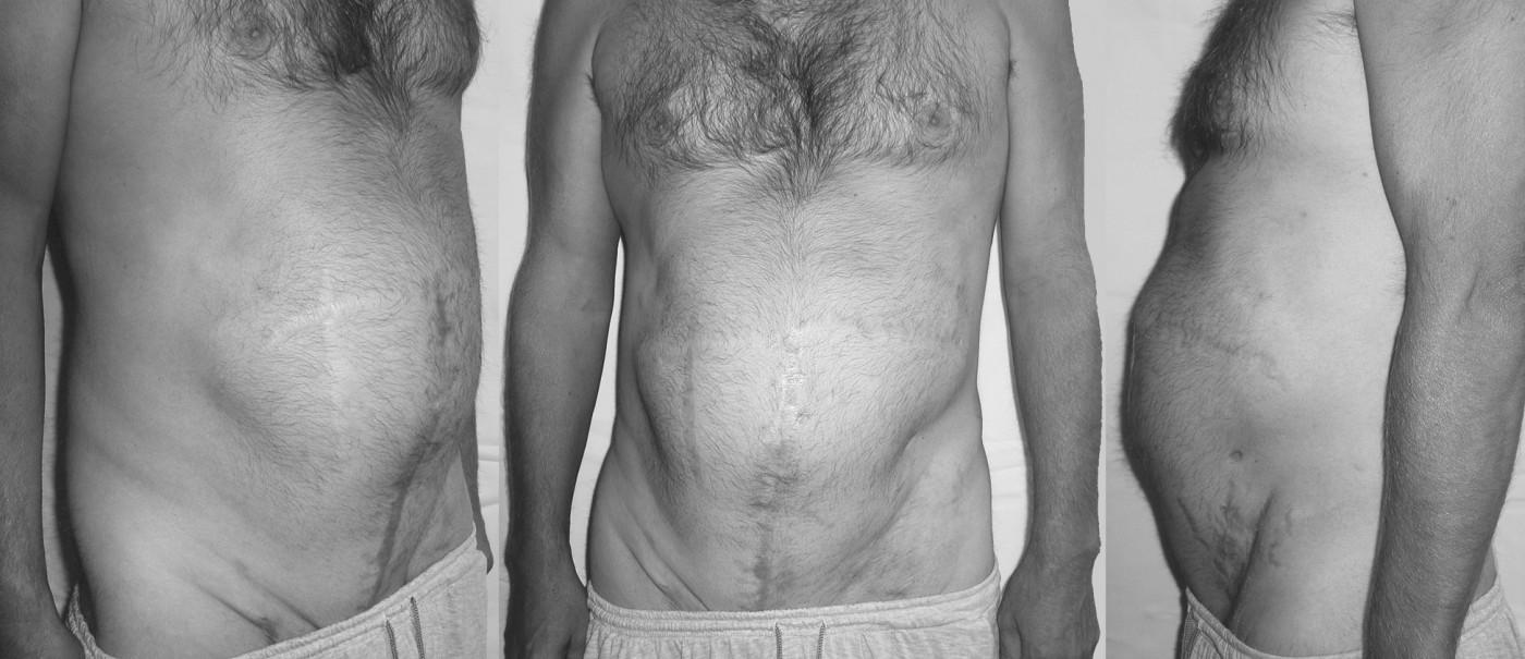 Fotografie – 2 měsíce po hernioplastice Pic. 7. Photo – 2 months after hernioplasty