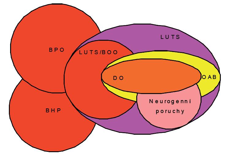 Vztah jednotlivých skupin a podskupin symptomů dolních močových cest u mužů BPO – benigní prostatická obstrukce; BHP – benigní hyperplazie prostaty; DO – hyperaktivita detruzoru; LUTS/BOO – symptomy dolních močových cest způsobené obstrukcí dolních močových cest OAB – hyperaktivita močového měchýře;  LUTS – symptomy dolních močových cest;