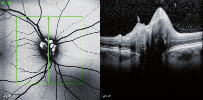 OCT Spectralis – fundus autoflorescencia a prierez TZN pravé oko (pacient č. 2). Drúzy sa zobrazujú autoflorescenciou, v pravej časti obrázka prierez TZN.
