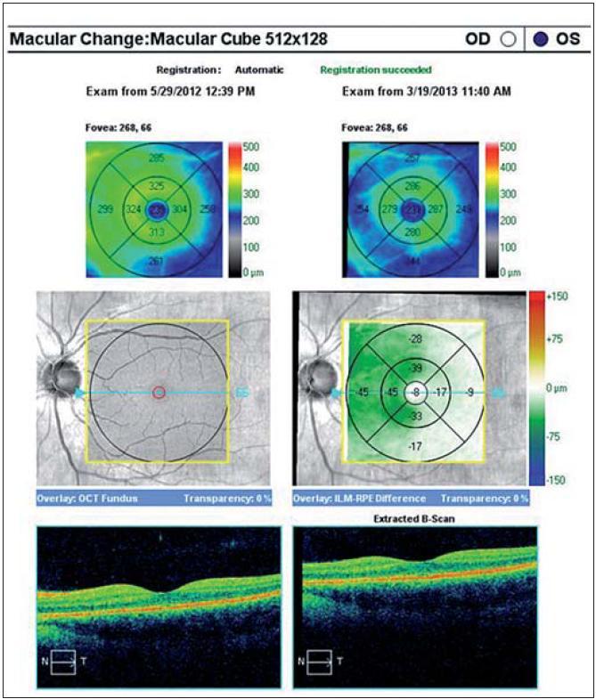 Rozdíl v makulární tloušťce po jednom roce sledování, ve vnitřní polovině makuly dochází k atrofii ve vrstvě gangliových buněk.
