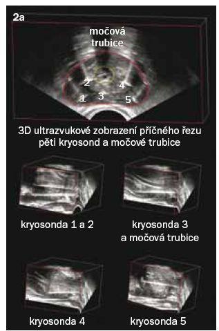Obr. 2a. Zavádění kryosond při 3D ultrazvukové navigaci, s ověřením správné polohy.