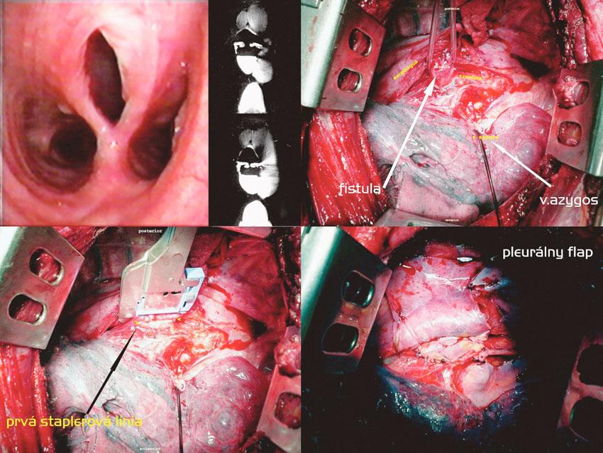 Staplerová separácia fistuly, pleurálny flap cestou pravostrannej torakotómie. Postup zľava doprava, zhora nadol: Tracheoskopický a CT obraz fistuly. Vypreparovaná fistula, prerušená v. azygos. Naloženie druhého pravouhlého staplera. Pleurálny flap vmedzerený medzi sutúry Fig. 4. Stapler separation of the fistule, pleural flap via right-sided thoracotomy. Left to right and top to down: tracheoscopic and CT views of the fistule. A fistula isolated, the azygos vein divided. Application of another right angle stapler. A pleural flap is placed between the sutures