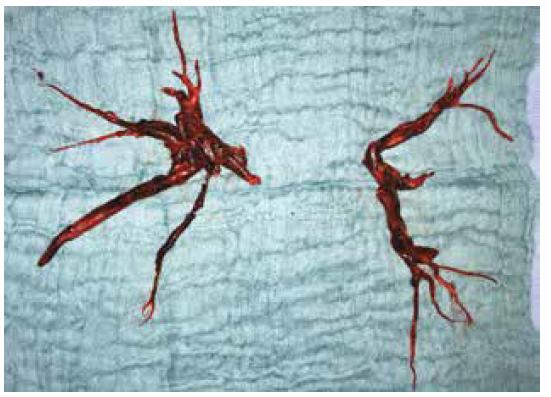 Embolus odstraněný z levé a pravé větve plicnice<br> Fig. 3: Emboli extracted from the left and right pulmonary artery