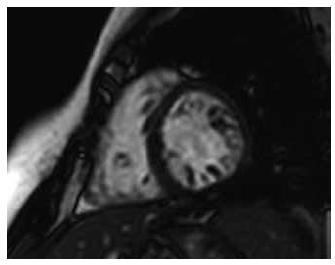 Obraz nekompaktní kardiomyopatie magnetickou rezonancí, end-diastola – poměr mezi nekompaktní a kompaktní vrstvou je > 2,3.