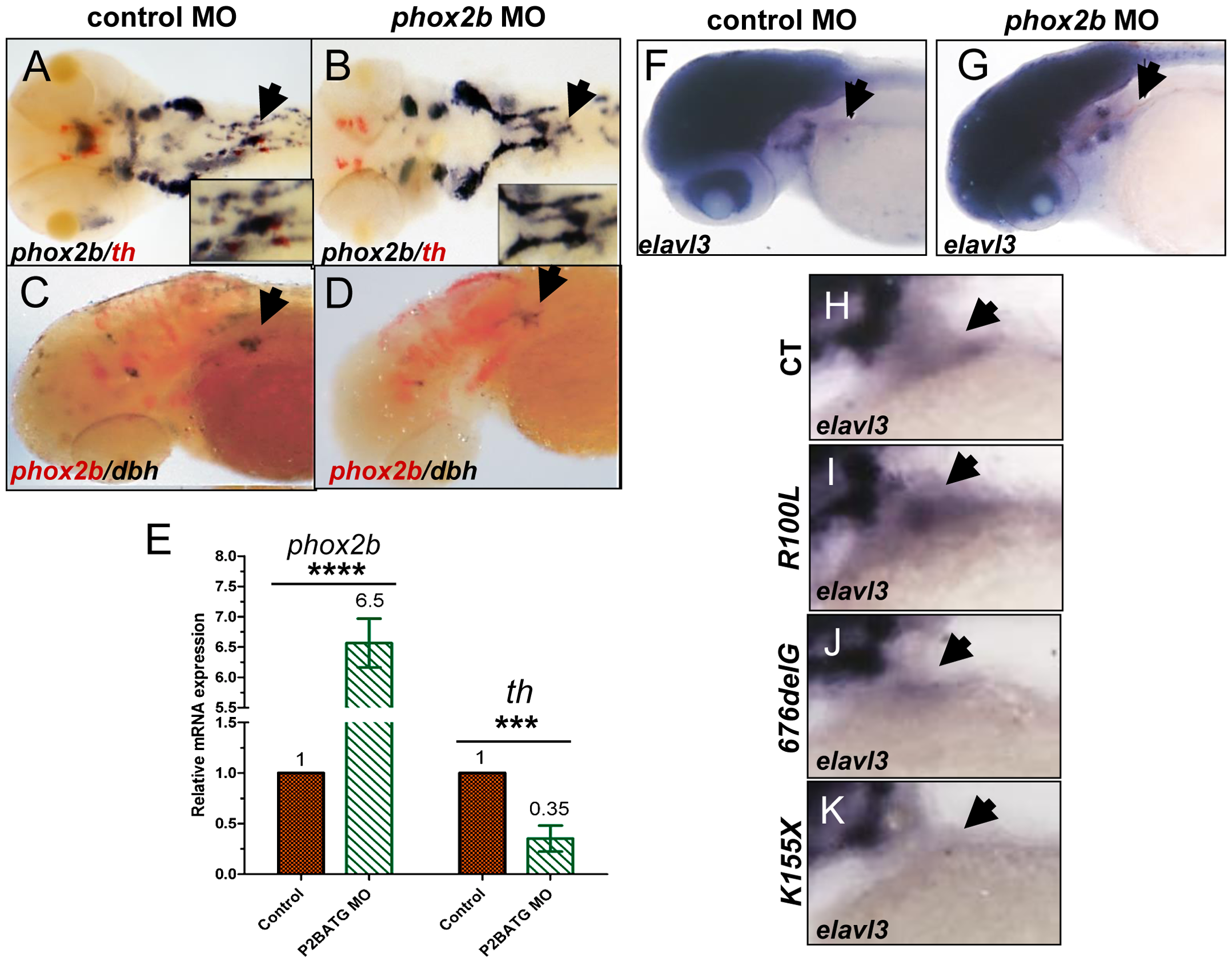 Phox2b deficiency causes arrest of SCG cells at an undifferentiated stage.
