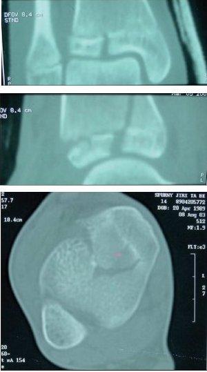 CT hlezna po 1,5mm s 2D rekonstrukcemi  a) rekonstrukce ve frontální rovině s lomnou linií epifýzy. b) rekonstrukce v sagitální rovině s lomnou linií procházející epifýzou a metafýzou, separace růstové štěrbiny. c) transverzální CT scan v úrovni epifýzy.
