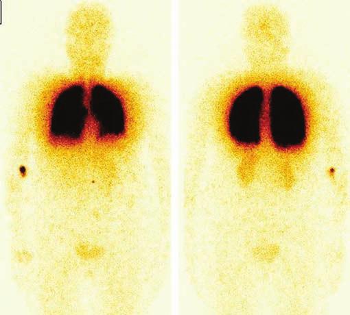 Celotělová scintigrafie s <sup>99m</sup>Tc-MAA po perkutánní transkatetrální mikroembolizaci plicních AV malformací pomocí platinových spirálek. Je patrná redukce extrapulmonární akumulace radiofarmaka v mozku, ledvinách a ve slezině, což svědčí pro zmenšení P-L zkratu. Přední a zadní projekce.