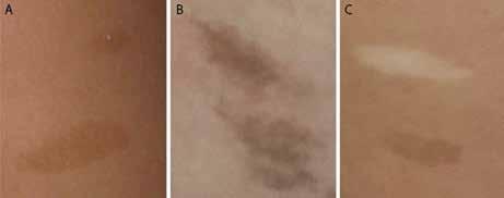 A. Pravidelné okraje a pravidelne rozložená pigmentácia u dieťaťa s NF1; 1B. Hyperpigmentácie s difúznymi okrajmi a nepravidelnou pigmentáciou u dieťaťa s CMMR-D syndrómom; 1C. Hyper- a hypopigmentované kožné makuly u dieťaťa s CMMR-D syndrómom.