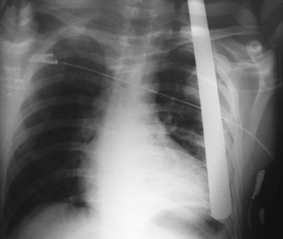 RTG hrudníku u zraněného s penetrujícím poraněním vzniklé pádem na hromosvod Fig. 3. Thoracic x-ray in a patient with penetrating trauma caused by a fall on a lightning conductor