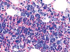 Megaloblastová diferenciácia erytropoézy v RA (farbenie podľa Giemsa)