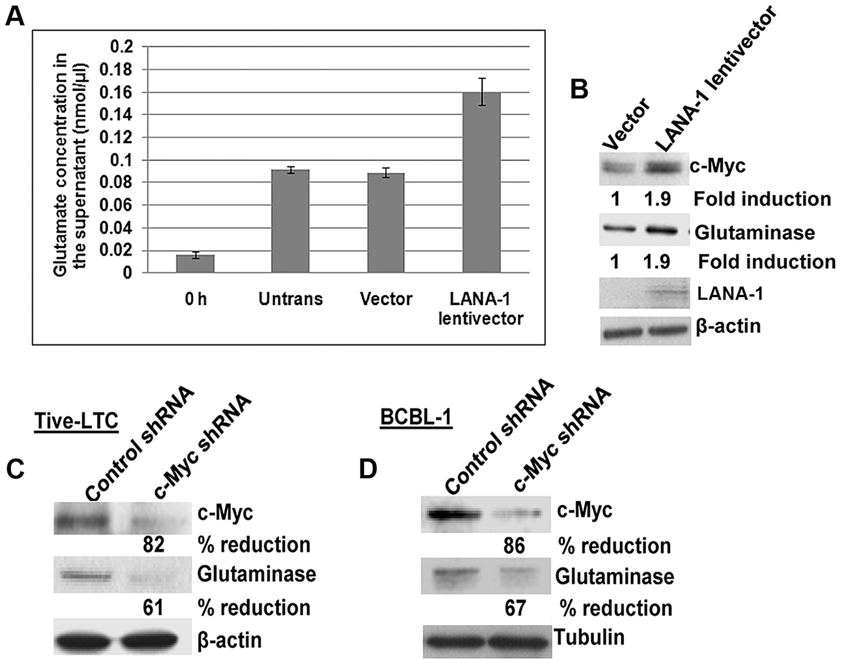 Exogenous KSHV latency associated LANA-1 protein expression increases glutamate secretion and the expression of glutaminase and c-Myc in BJAB cells.