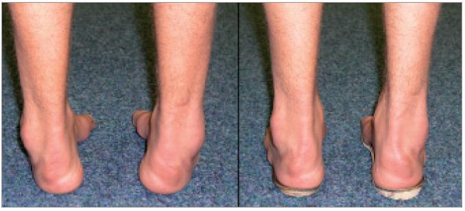 Ortopedické vložky zhotovené dle aktuálních individuálních měrných podkladů mohou pozitivně ovlivnit postavení nohy.