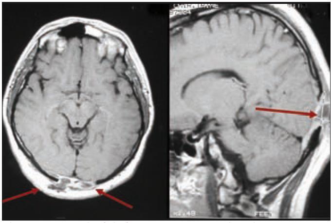 Pacient s multifokální kostní formou LCH, u něhož v hmoty LCH expandovaly z okcipitální části kalvy intrakraniálně, komprimovaly zrakové centrum. Pacient udával poruchu zraku, značné výpady zorného pole. V tomto případě však nešlo o přímé prorůstání LCH z kostí přes meningy do CNS.