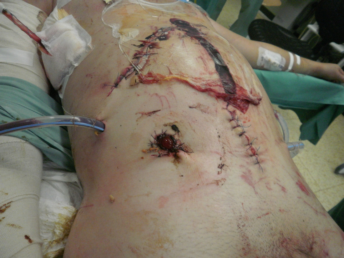 Pooperační snímek zraněného s laparostomií a ileostomii po damage control laparotomii (mechanismus úrazu - pád z výše)