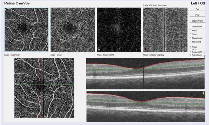 AngioOCT ľavého oka s NPDR: zobrazenie povrchového sietnicového plexu, hlbokého sietnicového plexu, vrstvy pigmentového epitelu sietnice a choriokapilaris