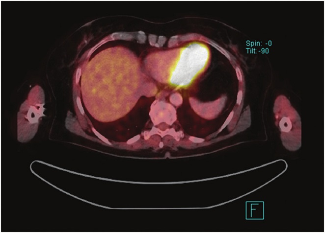 PET CT − Metastáza maligního melanomu v levém laloku jater