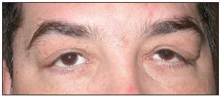 Výrazná dermatochaláza až esovité prohnutí víček u pacienta s těžkým FES a OSA, nález je více akcentován vlevo