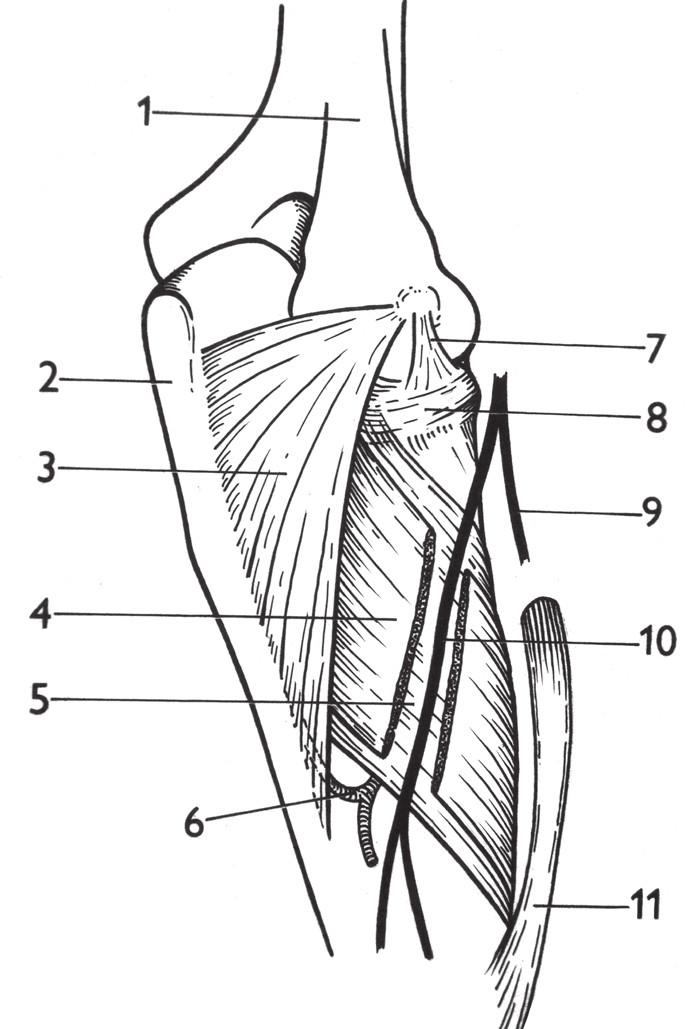 Canalis supinatorius: 1 – humerus, 2 – ulna, 3 – m. anconeus, 4 – povrchová vrstva m. supinator, 5 – hluboká vrstva m. supinator, 6 – a. interossea recurrens, 7 – lig. collaterale lat., 8 – lig. anulare radii, 9 – r. superficialis n. radialis, 10 – r. profundus n. radialis, 11 – m. pronator teres. <i>(Převzato z Bartoníček J. Operační přístupy u zlomenin hlavičky a diafýzy rádia. Acta Chir Orthop Traumatol Cech 1988;55:497–516.)</i> Fig. 6: Supinator channel: 1 – humerus, 2 – ulna, 3 – anconeus, 4 – superficial layer of the supinator, 5 – deep layer of the supinator, 6 – interosseous recurrent artery, 7 – lateral collateral ligament, 8 – radial annular ligament, 9 – superficial branch of the radial nerve, 10 – deep branch of the radial nerve, 11 – pronator teres. <i>(Reprinted from Bartoníček J. [Surgical approaches in fractures of the head and shaft of radius]. Acta Chir Orthop Traumatol Cech 1988;55:497–516.)</i>