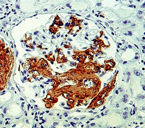 Imunohistochemický průkaz AA amyloidu – plošné pozitivity v glomerulu (objektiv 40krát)